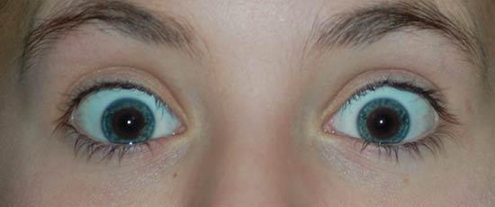 Ojos rojos corregidos